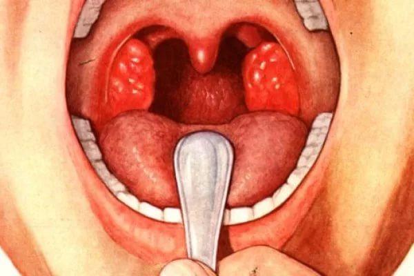 схема абсцесса горла