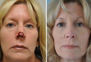 до и после лечения рака носа