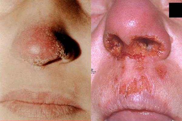 внешний вид туберкулеза носа