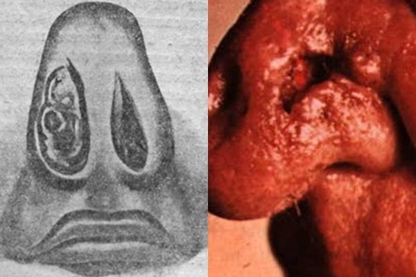 туберкулез на носу