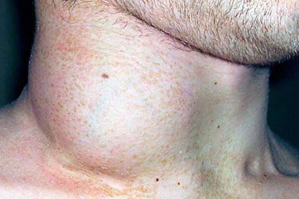 Лимфогранулематоз (опухоль Ходжкина)