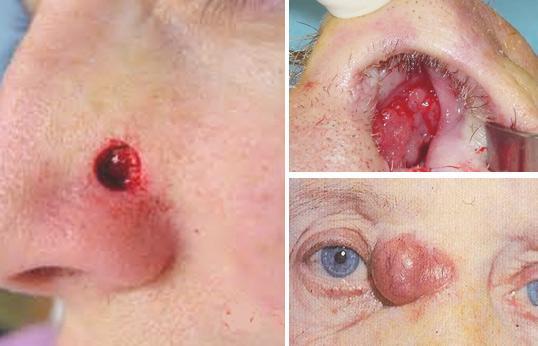стадии рака носа