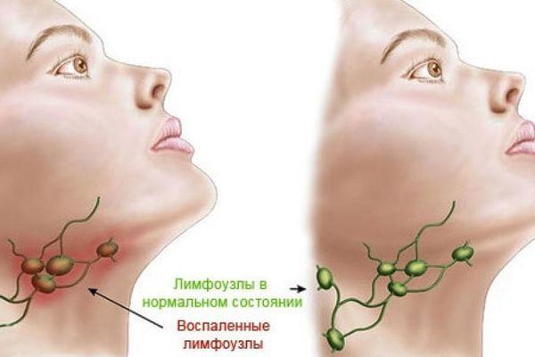 схема лимфатических узлов