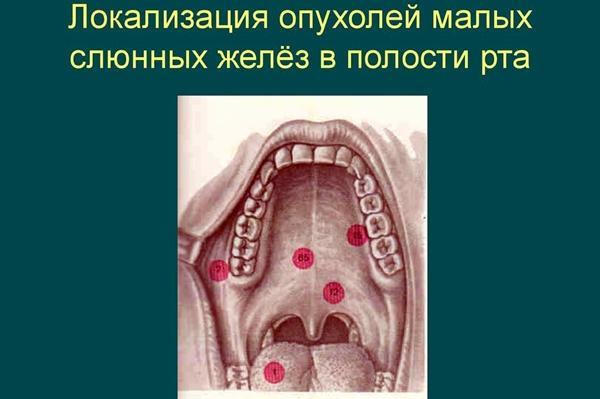 локализация опухолей слюнной железы