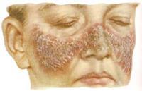 туберкулез носа у женщины