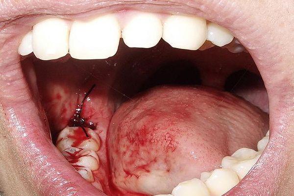 зуб кровоточит
