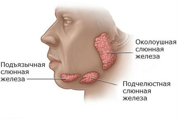 Кисты слюнных желез: причины, симптомы и лечение