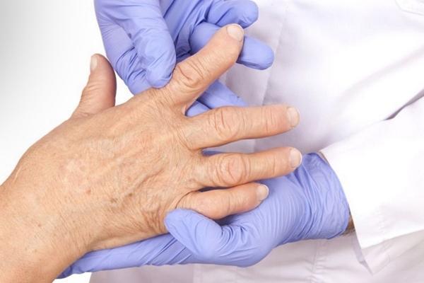 Деформирующий артрит пальцев рук