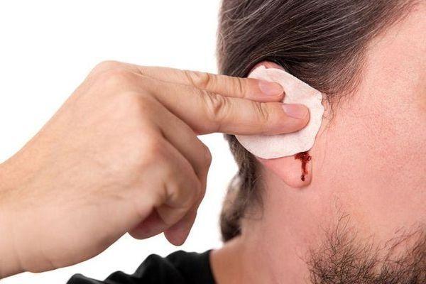 течет кровь из ушей
