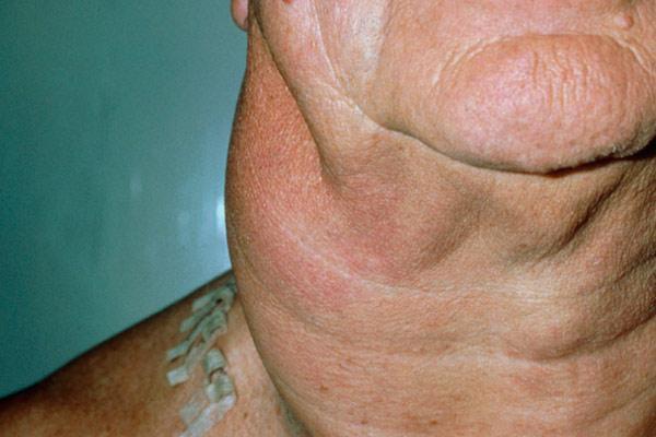 фиброма на шеи
