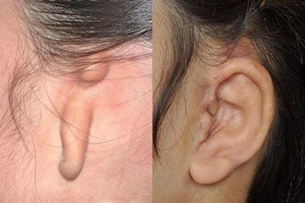 аномалии уха
