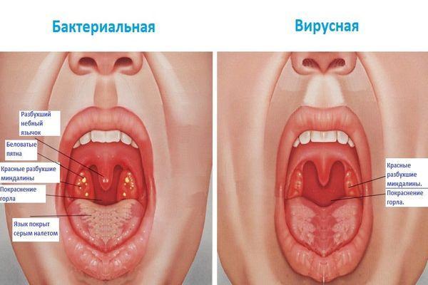 ангина бактериальная