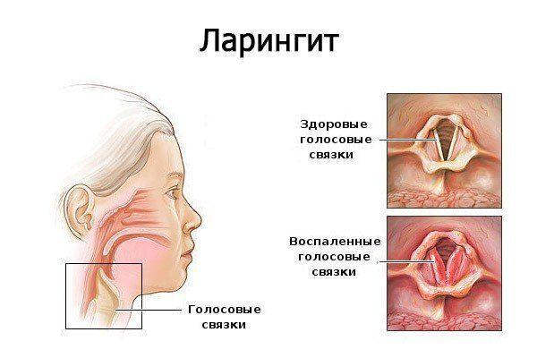 заболевание ларингит