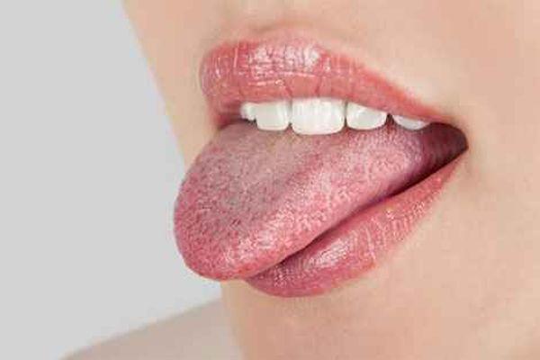 язык здоровый