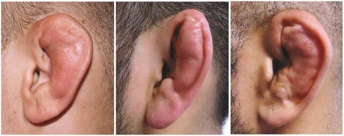 Классификация травм уха