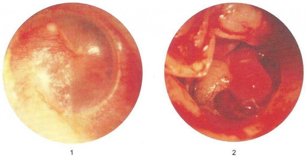 Гломусная опухоль среднего уха
