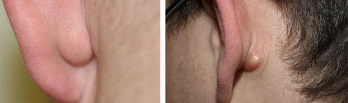 жировики за ушами