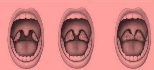 Аденоиды во рту