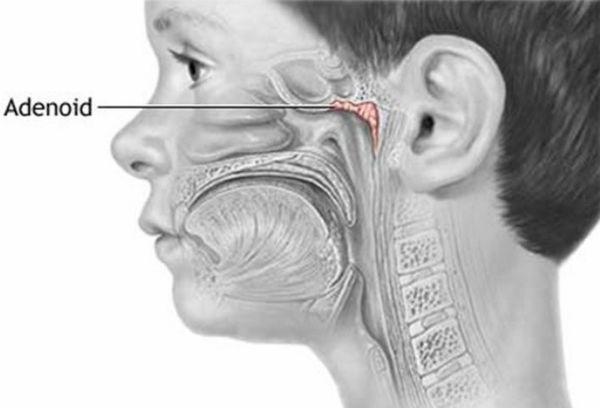 Аденоиды симптомы лечение у взрослых