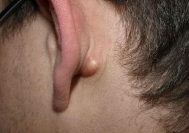 Липома за ухом фото