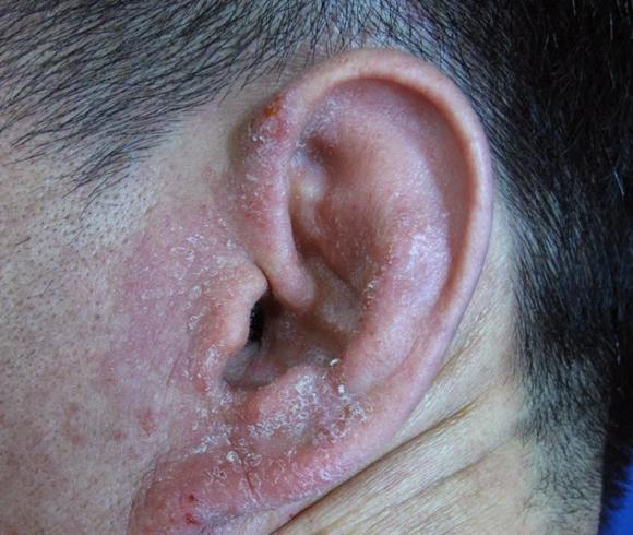 Дерматит ушной раковины
