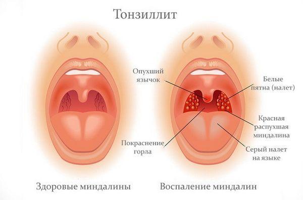Тонзиллит или ангина