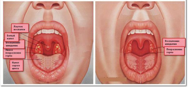 Гнойно-воспалительные процессы