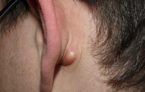 Жировик за ухом