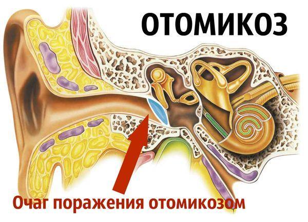 Отомикоз