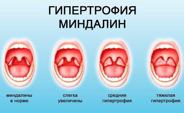 Гипертрофированные миндалины