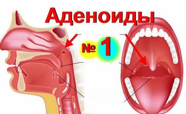 Аденоиды в горле