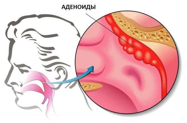 Аденоидит симптомы