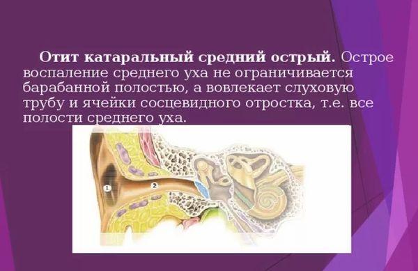 Острый катаральный отит