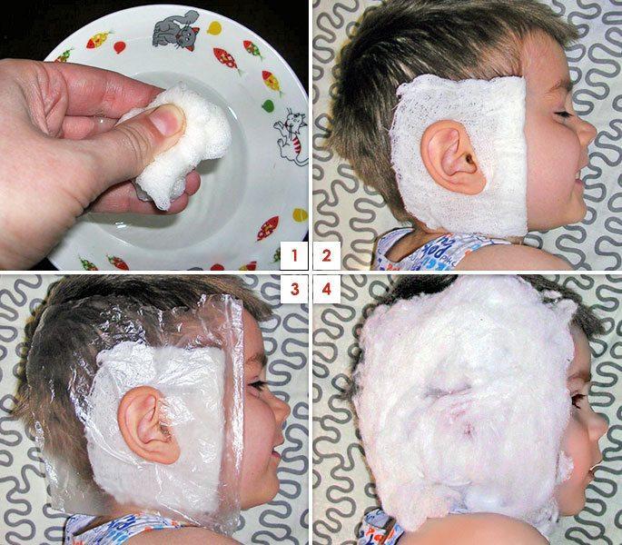 компрессы на ухо