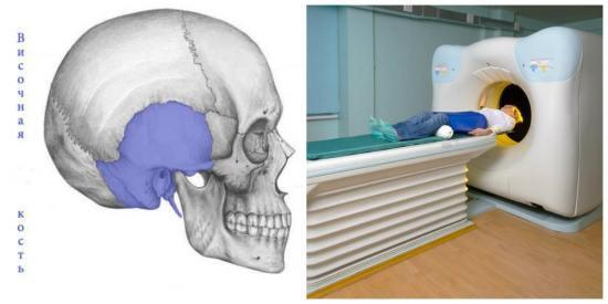 Рентген височных костей