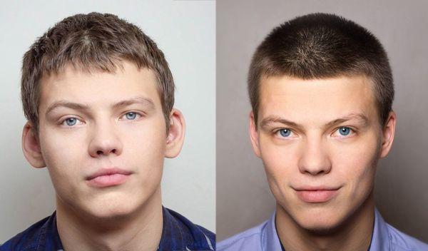 Уши до и после операции