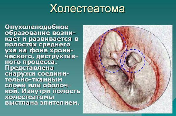 Холестеатома в ухе