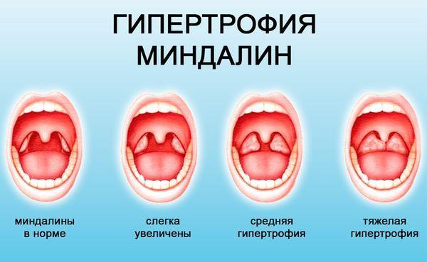 Гипертрофия миндалин