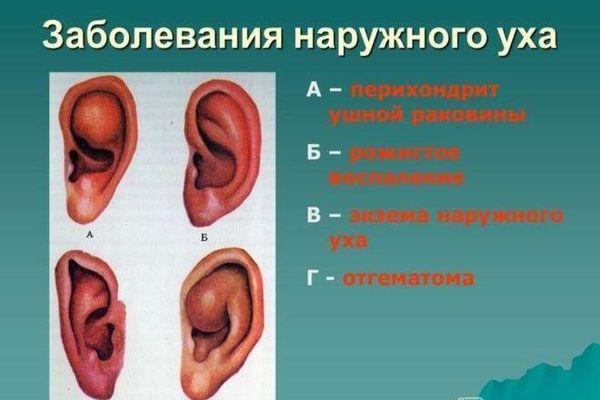 заболевания наружного уха