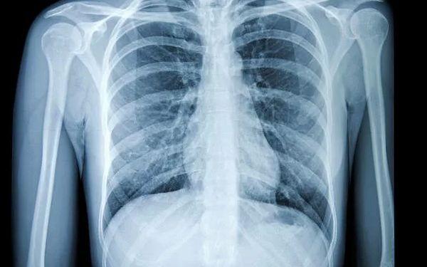 КТ грудной клетки