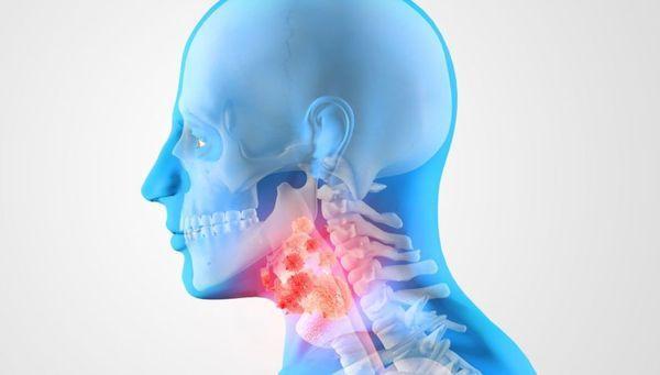 Аллергены в горле
