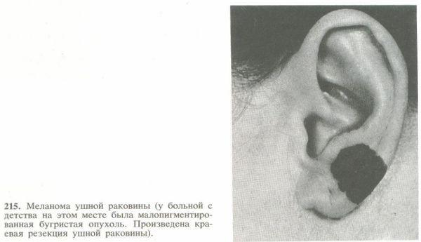 Меланома на ухе