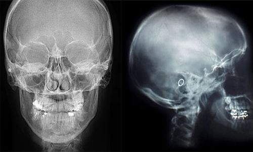 УЗИ или рентген