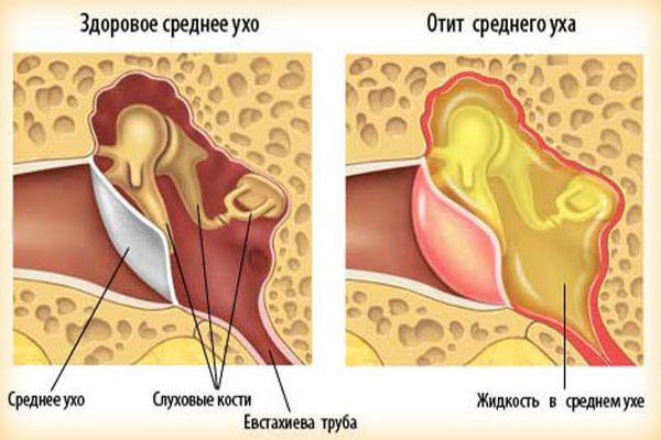 признаки болезни уха