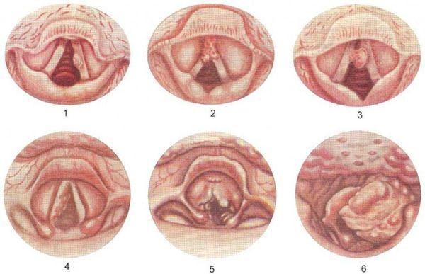 Заболевания гортани