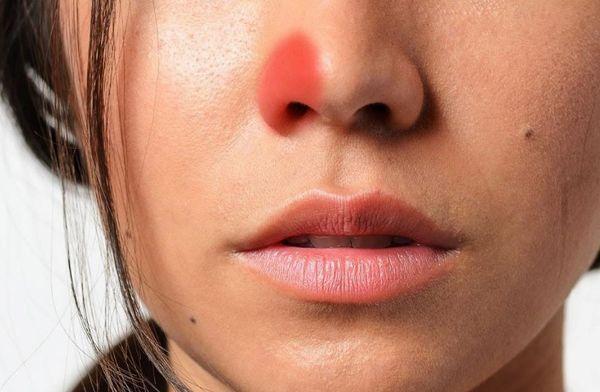 Заложенность в ноздре