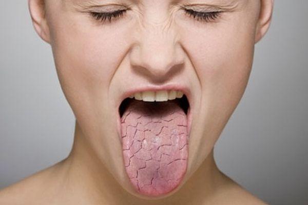 шершавый язык