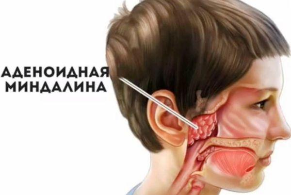 Аденоидная миндалина
