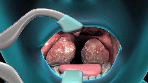 Проведение тонзиллэктомии