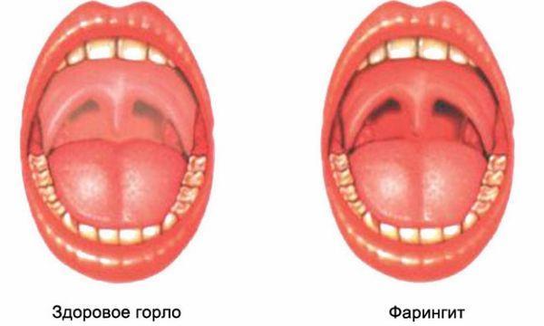 Фарингит в горле